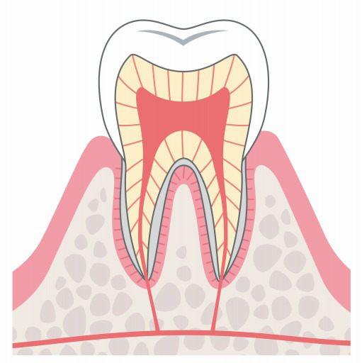 CO:初期の虫歯