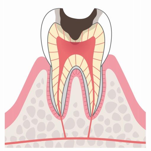C3:虫歯が神経に到達している