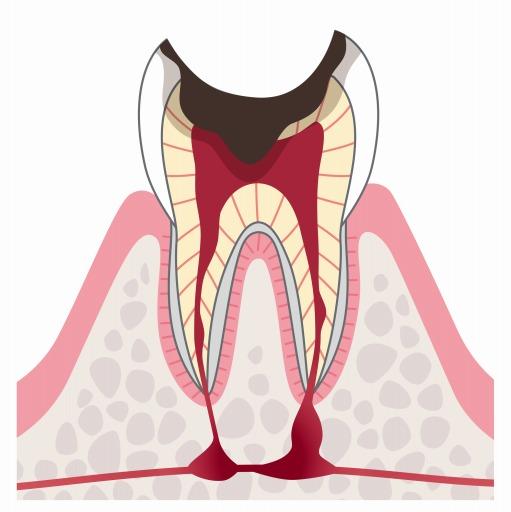 C4:歯根まで到達した虫歯