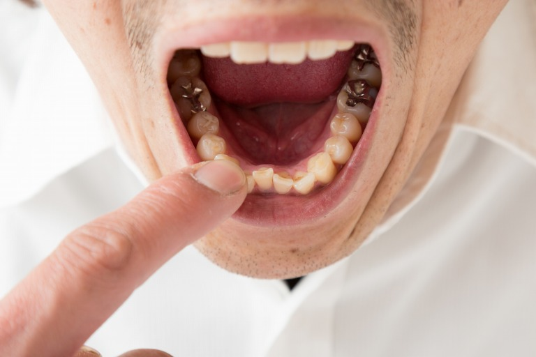 大人の80%が歯周病になっているというおそろしさ