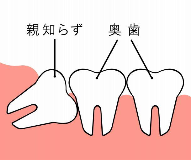 嗚咽 歯磨き