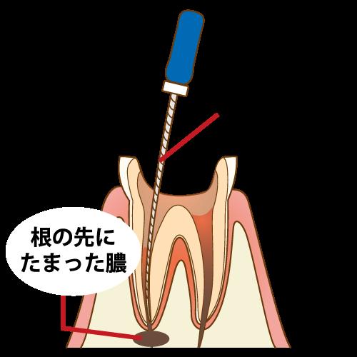 重度に進行した虫歯に行います